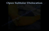 Open Subtalar Dislocation  Everything You Need To Know  Dr. Nabil Ebraheim