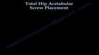 Total Hip Acetabular Screw Placement  Everything You Need To Know  Dr. Nabil Ebraheim