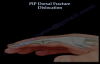 PIP Dorsal Fracture Dislocation  Everything You Need To Know  Dr. Nabil Ebraheim
