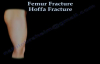 Hoffa Fracture  Everything You Need To Know  Dr. Nabil Ebraheim