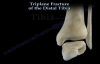 Triplane Fracture Of The Distal Tibia  Everything You Need To Know  Dr. Nabil Ebraheim