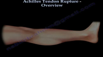 Achilles Tendon Rupture Overview  Everything You Need To Know  Dr. Nabil Ebraheim