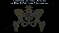 Avulsion Fractures Around The Hip In Adolescence  Everything You Need To Know  Dr. Nabil Ebraheim