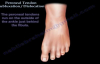 Peroneal Tendon Subluxation  Dislocation  Everything You Need To Know  Dr. Nabil Ebraheim