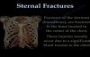 Sternal Fractures  Everything You Need To Know  Dr. Nabil Ebraheim