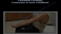 Volkmanns Ischemic Contracture Early Childhood  Everything You Need To Know  Dr. Nabil Ebraheim