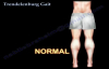 Trendelenburg Gait  Everything You Need To Know  Dr. Nabil Ebraheim
