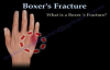 Boxers Fracture  Everything You Need To Know  Dr. Nabil Ebraheim