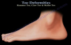 Toe Deformities Hammer, Claw & Mallet Toes  Everything You Need To Know  Dr. Nabil Ebraheim