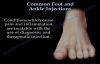 Common Foot And Ankle Injections  Everything You Need To Know  Dr. Nabil Ebraheim