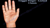 Trigger Finger Locked classic Everything You Need To Know  Dr. Nabil Ebraheim