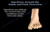 Injections Around The Ankle and Foot Overview  Everything You Need To Know  Dr. Nabil Ebraheim