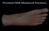 Proximal Fifth Metatarsal Fractures  Everything You Need To Know  Dr. Nabil Ebraheim