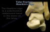 Talus Fracture , Hawkins Sign  Everything You Need To Know  Dr. Nabil Ebraheim