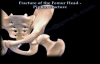 Fractures Of The Femur Head ,Pipkin Fracture  Everything You Need To Know  Dr. Nabil Ebraheim
