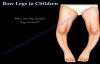 Bow Legs In Children  Everything You Need To Know  Dr. Nabil Ebraheim